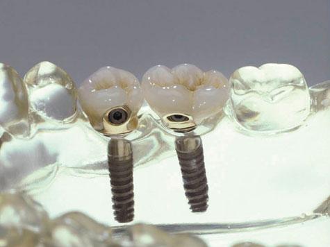 Dritte Zähne Wachsen