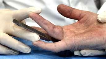 Bänderriss ringfinger